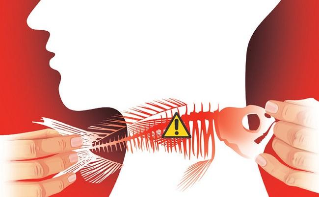 Hóc xương cá có tự khỏi không? Một số mẹo trị hóc xương cá ở cổ bạn nên biết
